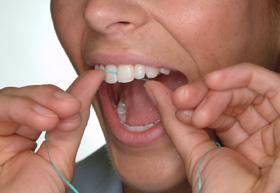 Dalal Dental Care - Flossing