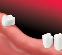 Dalal Dental Care - Dr. Alpa Dalal DDS